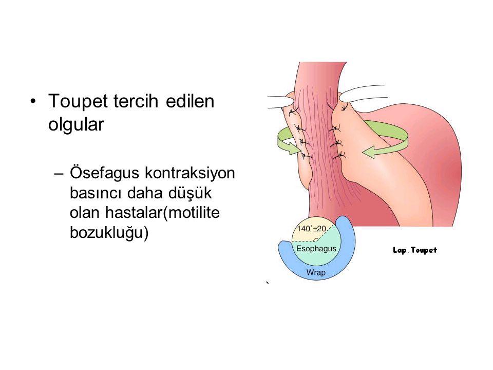 Toupet tercih edilen olgular –Ösefagus kontraksiyon basıncı daha düşük olan hastalar(motilite bozukluğu)