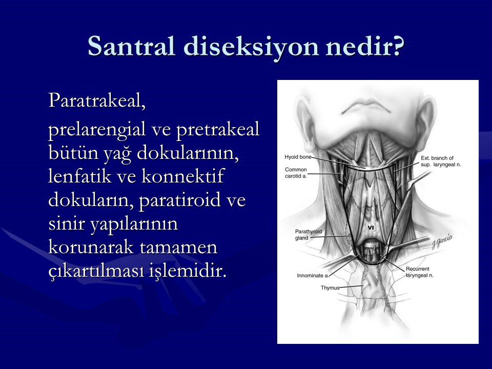 Santral diseksiyon nedir? Paratrakeal, prelarengial ve pretrakeal bütün yağ dokularının, lenfatik ve konnektif dokuların, paratiroid ve sinir yapıları