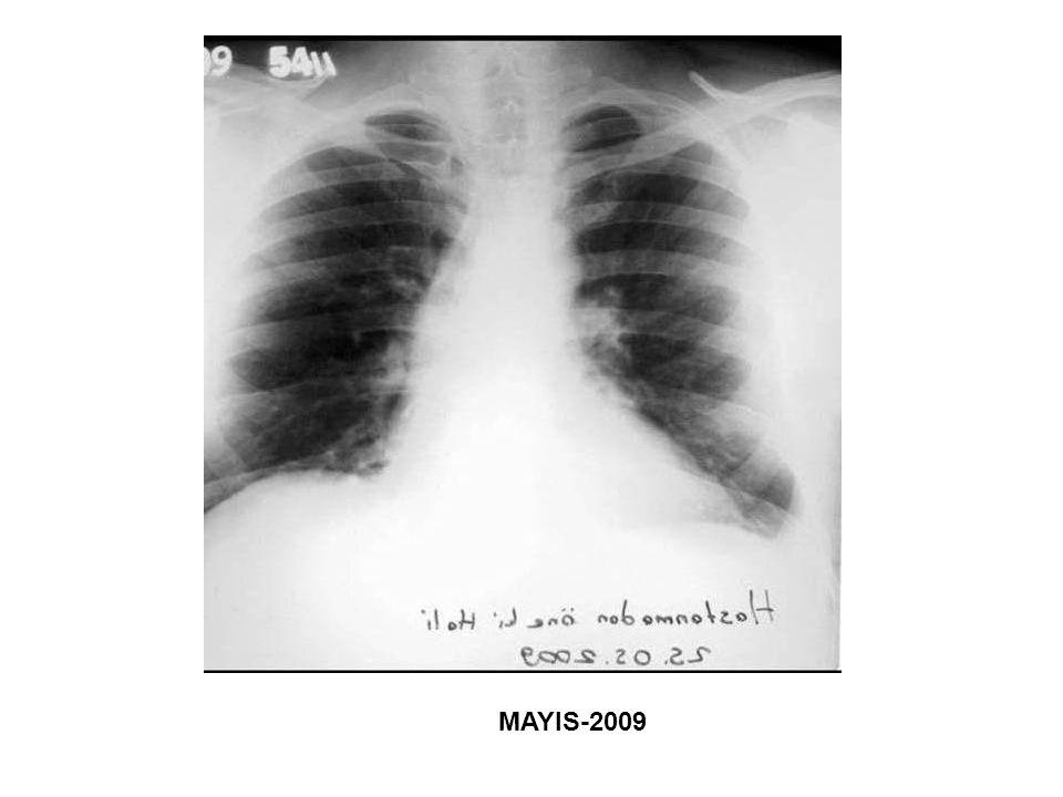 OSTEOPONTİN Mezotelyomada prognostik bir faktör olarak serum osteopontin seviyesinin değeri –Serum osteopontin seviyesi survey ile ters orantılıdır ve yüksek seviyeler birçok kanserde (meme, prostat, kolon, pankreas özofagus ve akciğer kanserleri) kötü prognoz ve ileri evre ile ilintilidir.