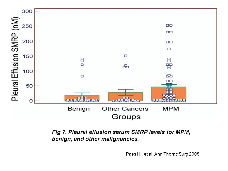 Pass HI, et al. Ann Thorac Surg 2008 Fig 7. Pleural effusion serum SMRP levels for MPM, benign, and other malignancies.