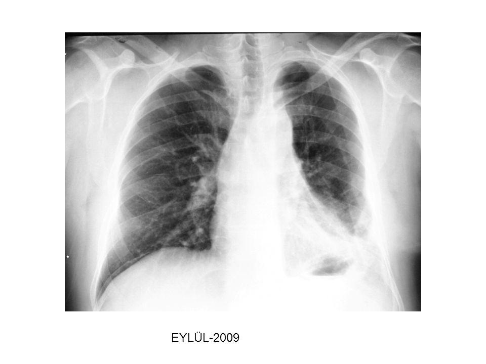 MEZOTELYAL MARKERLER MM insidansı Finlandiya popülasyonuna göre asbestozis olgularında 32 kat ve benign plevral hastalıkta 5.5 kat daha yüksektir.