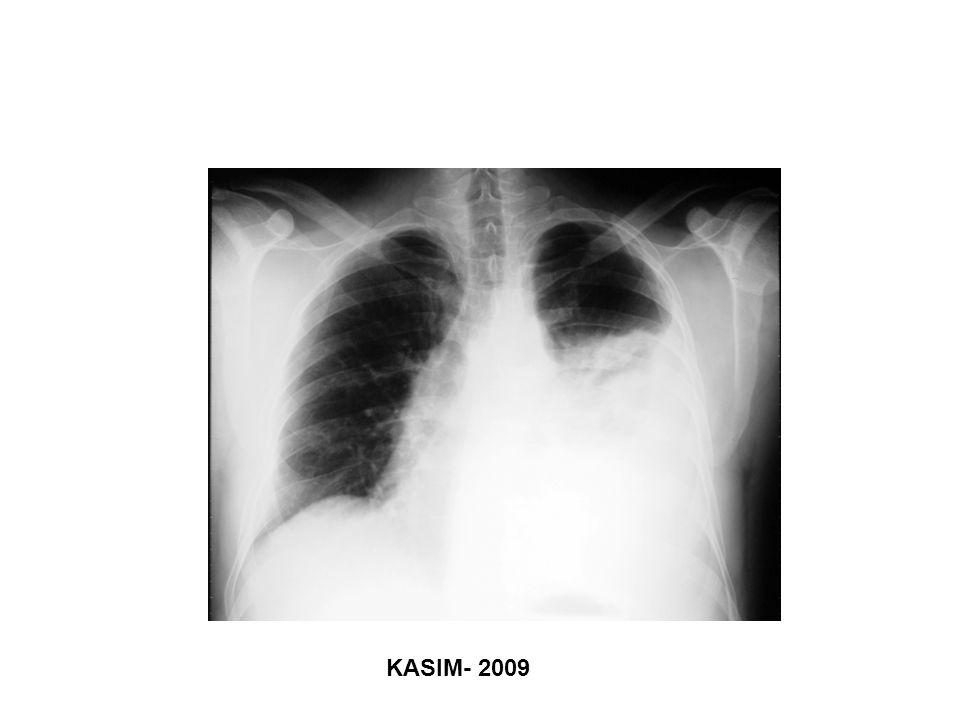 Pass HI, et al.Ann Thorac Surg 2008 Fig 2.