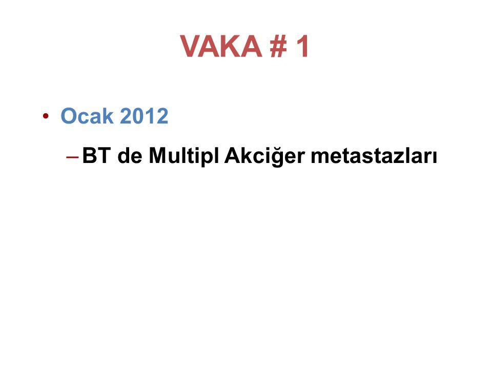 VAKA # 1 Adjuvan Kemoterapi: AC x 4 + Docetaxel x 4 + trastuzumab x 1 yıl Adjuvant radyoterapi almış.