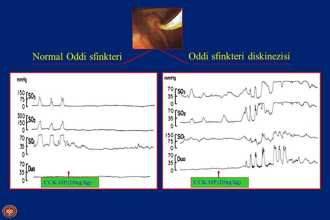 Normal Oddi sfinkteri Oddi sfinkteri diskinezisi CCK-OP (20ng/kg)