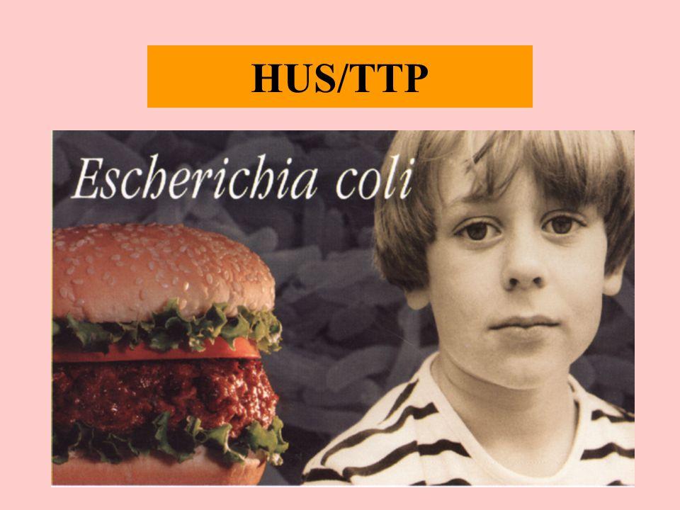 HUS/TTP