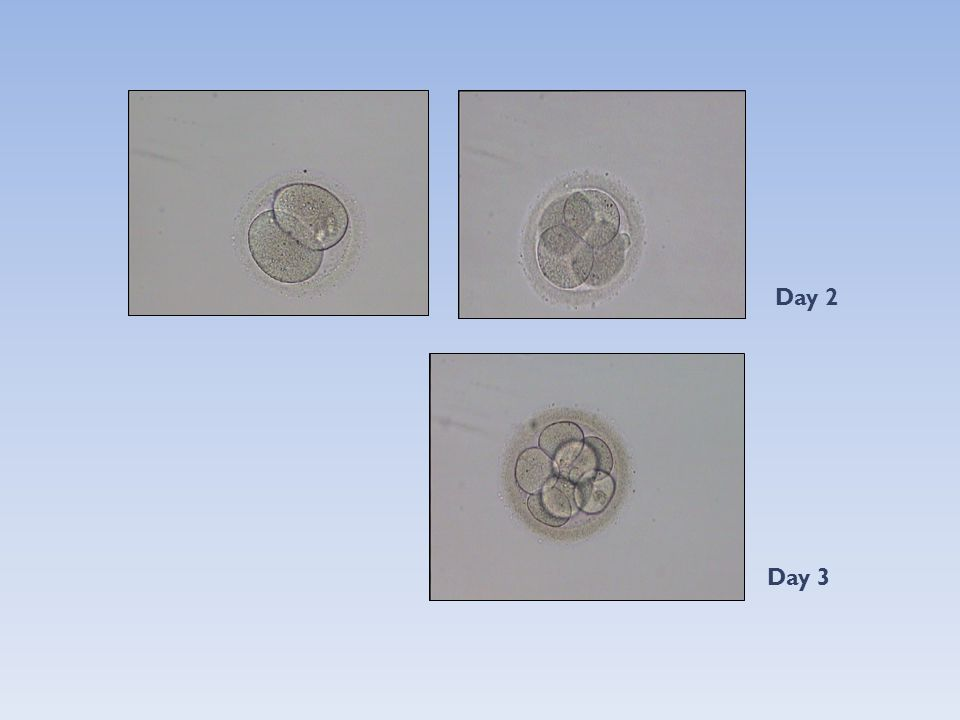 Two step (day 1-3 + day 5) embryo transfers improve ongoing pregnancy rate in women with multiple failures of conception after ART.