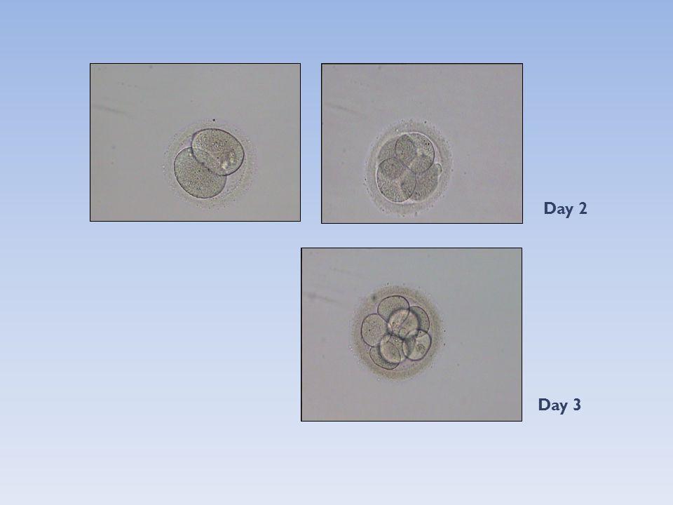 Reduction of ectopic pregnancies with day 5/6 embryo transfer versus day 3 embryo transfer (Langley et al., 2005, Fertil Steril) - Retrospektif çalışma -3.