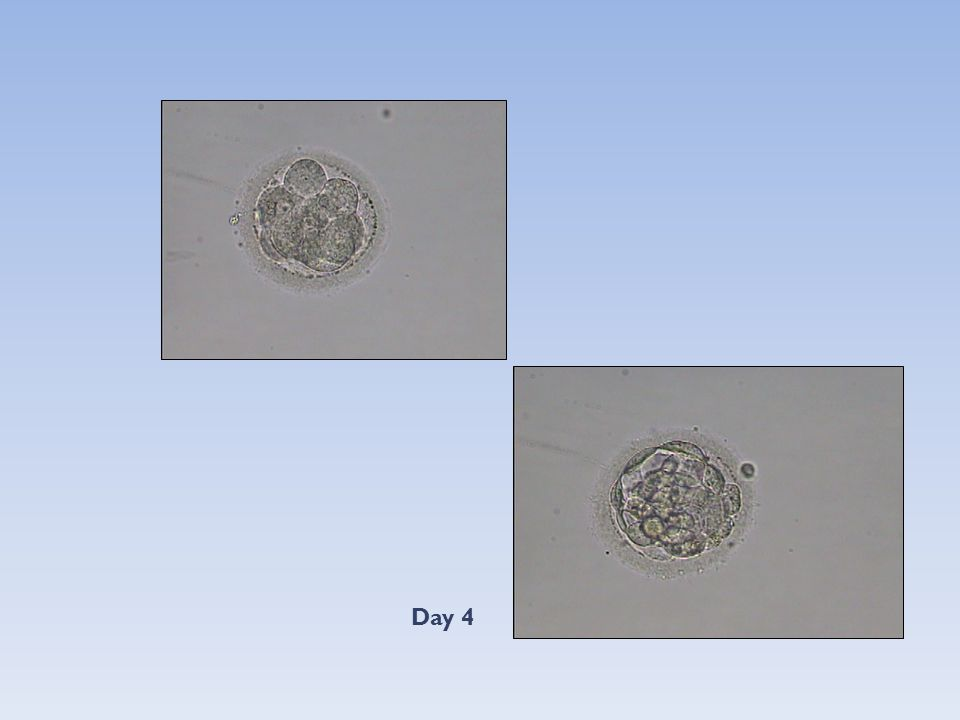 Sequential transfer of day 3 embryos and blastocysts after previous IVF failures despite adequate ovarian response.