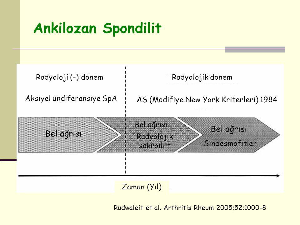 Ankilozan Spondilit Bel ağrısı Radyolojik sakroiliit Sindesmofitler Bel ağrısı Zaman (Yıl) Radyoloji (-) dönem Radyolojik dönem Aksiyel undiferansiye SpA AS (Modifiye New York Kriterleri) 1984 Rudwaleit et al.