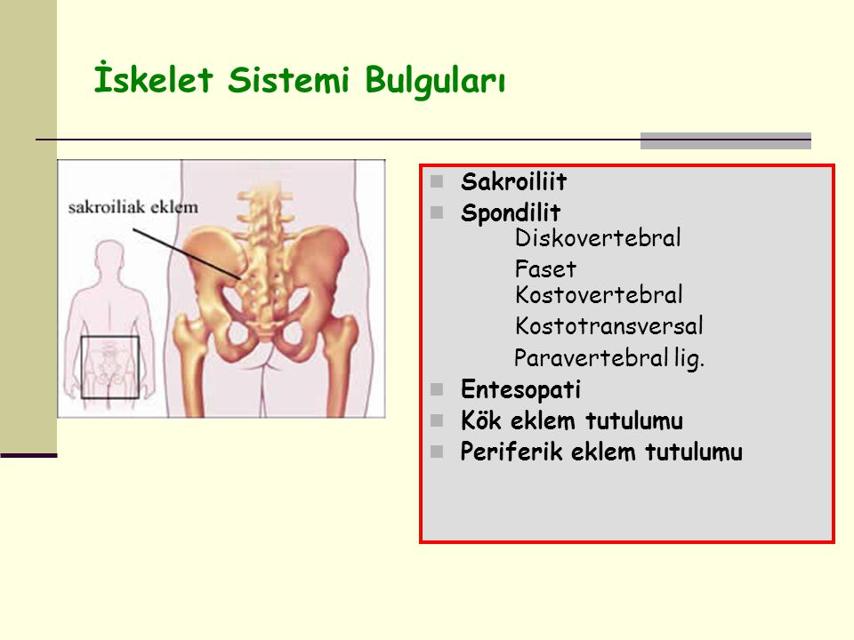 İskelet Sistemi Bulguları Sakroiliit Spondilit Diskovertebral Faset Kostovertebral Kostotransversal Paravertebral lig.