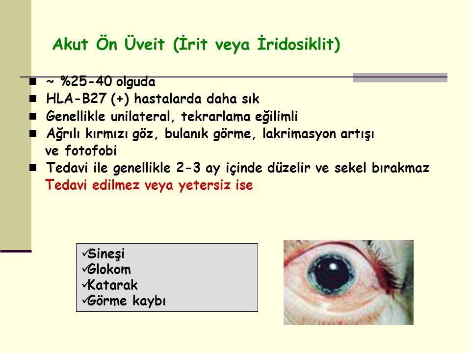 Akut Ön Üveit (İrit veya İridosiklit) ~ %25-40 olguda HLA-B27 (+) hastalarda daha sık Genellikle unilateral, tekrarlama eğilimli Ağrılı kırmızı göz, bulanık görme, lakrimasyon artışı ve fotofobi Tedavi ile genellikle 2-3 ay içinde düzelir ve sekel bırakmaz Tedavi edilmez veya yetersiz ise Sineşi Glokom Katarak Görme kaybı