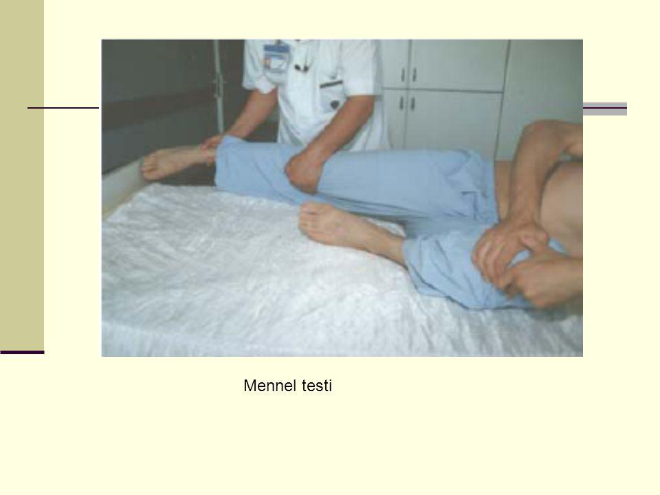 Mennel testi
