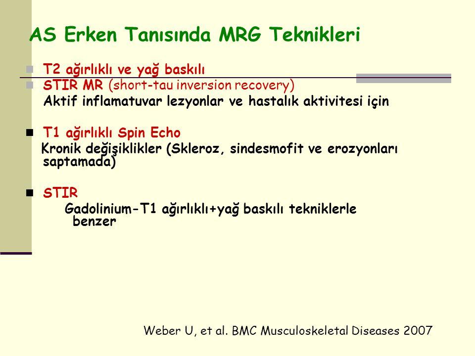 AS Erken Tanısında MRG Teknikleri T2 ağırlıklı ve yağ baskılı STIR MR (short-tau inversion recovery) Aktif inflamatuvar lezyonlar ve hastalık aktivitesi için T1 ağırlıklı Spin Echo Kronik değişiklikler (Skleroz, sindesmofit ve erozyonları saptamada) STIR Gadolinium-T1 ağırlıklı+yağ baskılı tekniklerle benzer Weber U, et al.