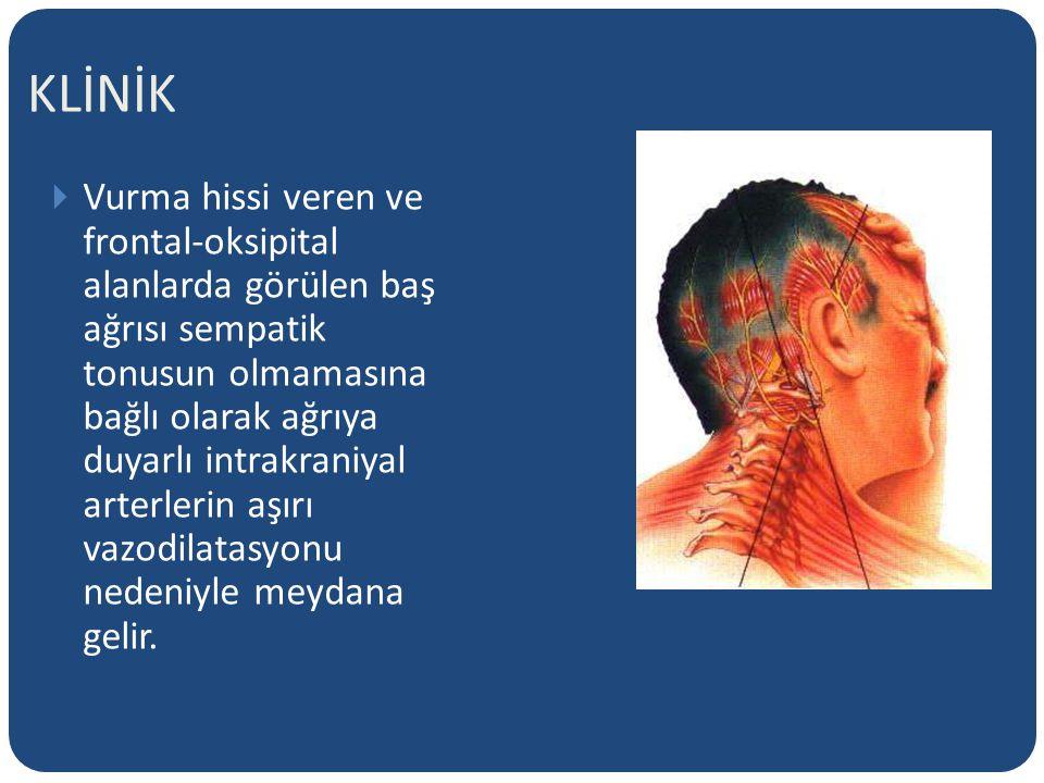 KLİNİK  Vurma hissi veren ve frontal-oksipital alanlarda görülen baş ağrısı sempatik tonusun olmamasına bağlı olarak ağrıya duyarlı intrakraniyal arterlerin aşırı vazodilatasyonu nedeniyle meydana gelir.