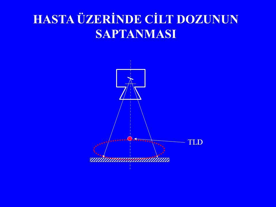 TLD KALİBRASYONU 1- Her fosforun farklı hassasiyette olması Tüm TLD'ler aynı miktarda ışınlanır, ortalama değerden belirli bir oranda sapanlar çalışmaya dahil edilmezler 2- Foto tüp akımının ışınlama ya da doz birimine çevrilmesi gerekir Belirli sayıda TLD bir iyon odası ile beraber ışınlanarak akım-doz (nC-mGy) dönüşümü bulunmalıdır