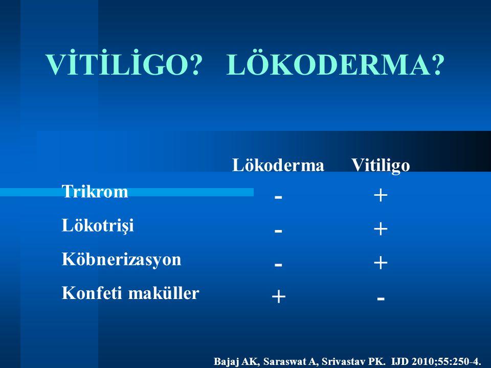 VİTİLİGO? LÖKODERMA? LökodermaVitiligo Trikrom -+ Lökotrişi -+ Köbnerizasyon -+ Konfeti maküller +- Bajaj AK, Saraswat A, Srivastav PK. IJD 2010;55:25