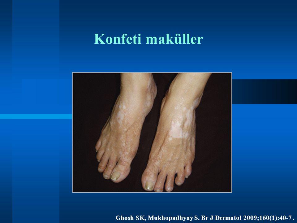 Konfeti maküller Ghosh SK, Mukhopadhyay S. Br J Dermatol 2009;160(1):40-7.