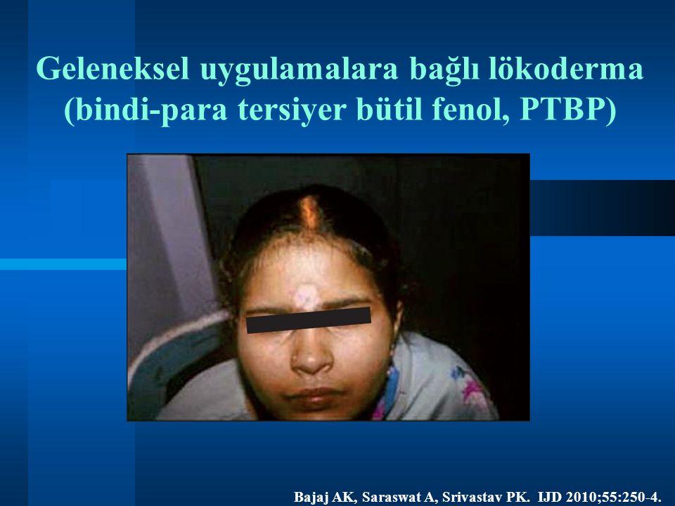 Geleneksel uygulamalara bağlı lökoderma (bindi-para tersiyer bütil fenol, PTBP) Bajaj AK, Saraswat A, Srivastav PK.