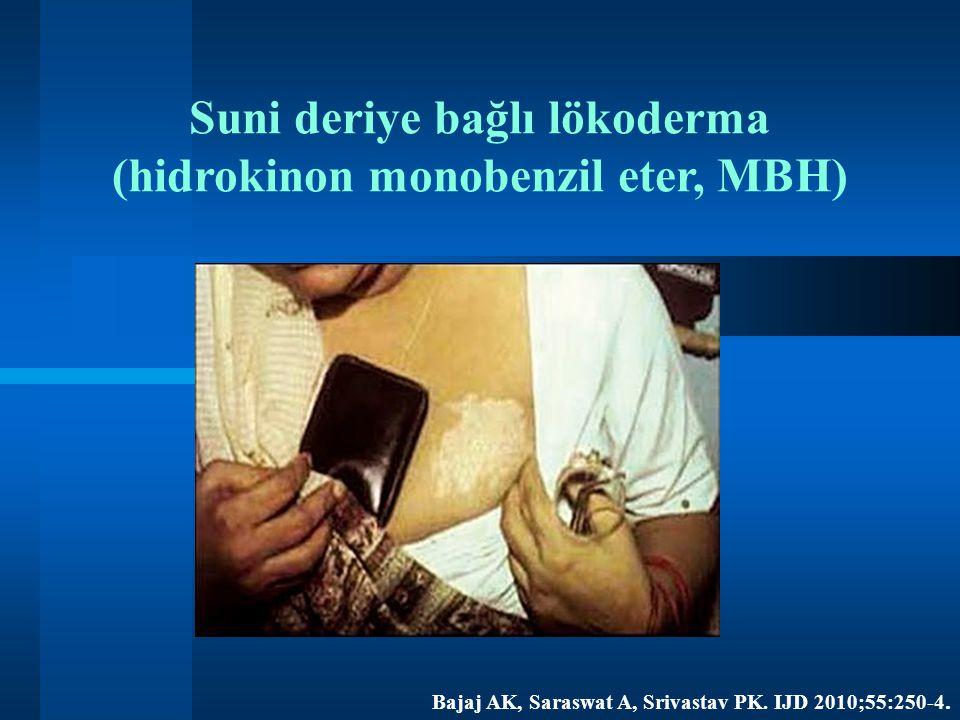 Suni deriye bağlı lökoderma (hidrokinon monobenzil eter, MBH) Bajaj AK, Saraswat A, Srivastav PK. IJD 2010;55:250-4.