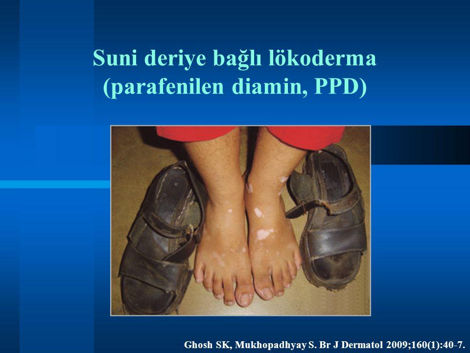 Suni deriye bağlı lökoderma (parafenilen diamin, PPD) Ghosh SK, Mukhopadhyay S. Br J Dermatol 2009;160(1):40-7.