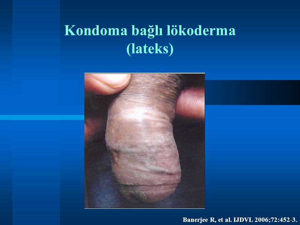 Kondoma bağlı lökoderma (lateks) Banerjee R, et al. IJDVL 2006;72:452-3.