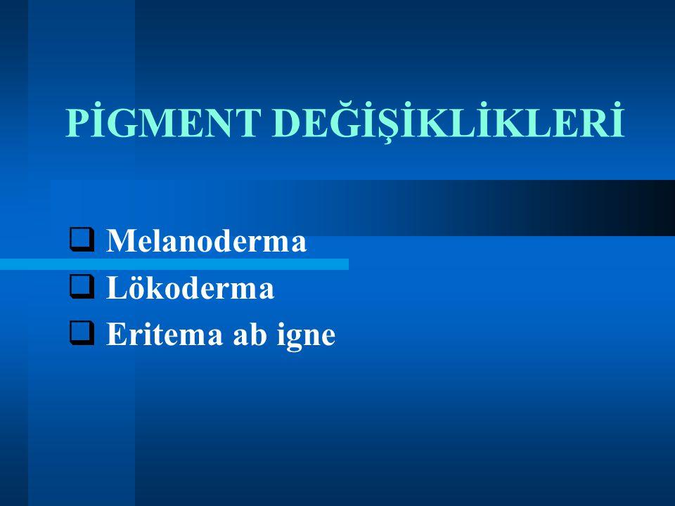 PİGMENT DEĞİŞİKLİKLERİ  Melanoderma  Lökoderma  Eritema ab igne