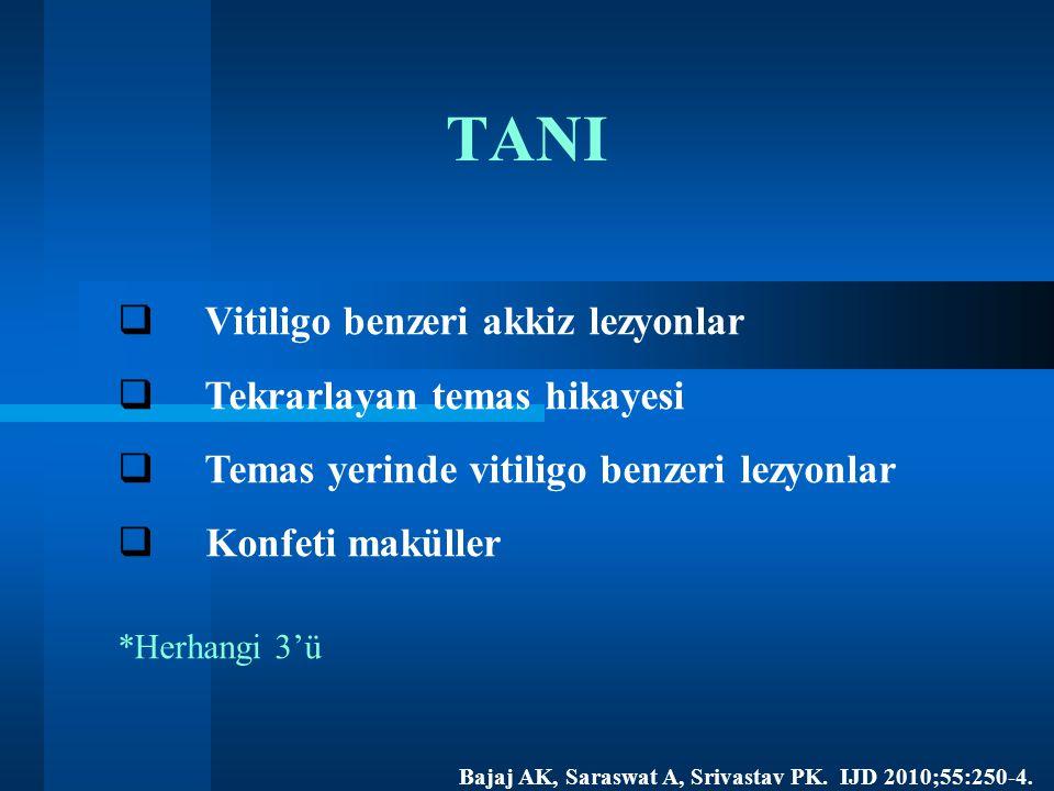 TANI  Vitiligo benzeri akkiz lezyonlar  Tekrarlayan temas hikayesi  Temas yerinde vitiligo benzeri lezyonlar  Konfeti maküller *Herhangi 3'ü Bajaj AK, Saraswat A, Srivastav PK.