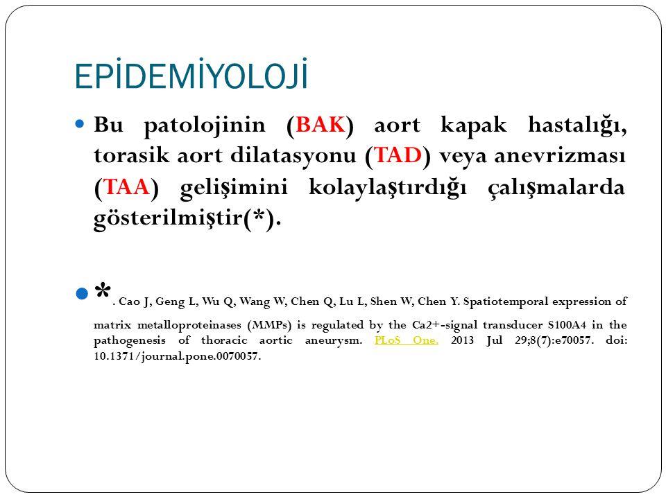ETİYOLOJİ Aort'un patolojik dilatasyonu; -Ya ş lanma, Ateroskleroz -Hipertansiyon -Enfeksiyon (sifiliz, tüberküloz, mantar) -Enflamasyon (Behçet hastalı ğ ı) -Travma (ate ş li silah yaralanması, künt travma) -Konjenital anomaliler (biküspit aort kapak) -Mediyal dejenerasyona (Marfan, Ehlers-Danlos Sendromu) ba ğ lı geli ş ebilir ( + ) +.