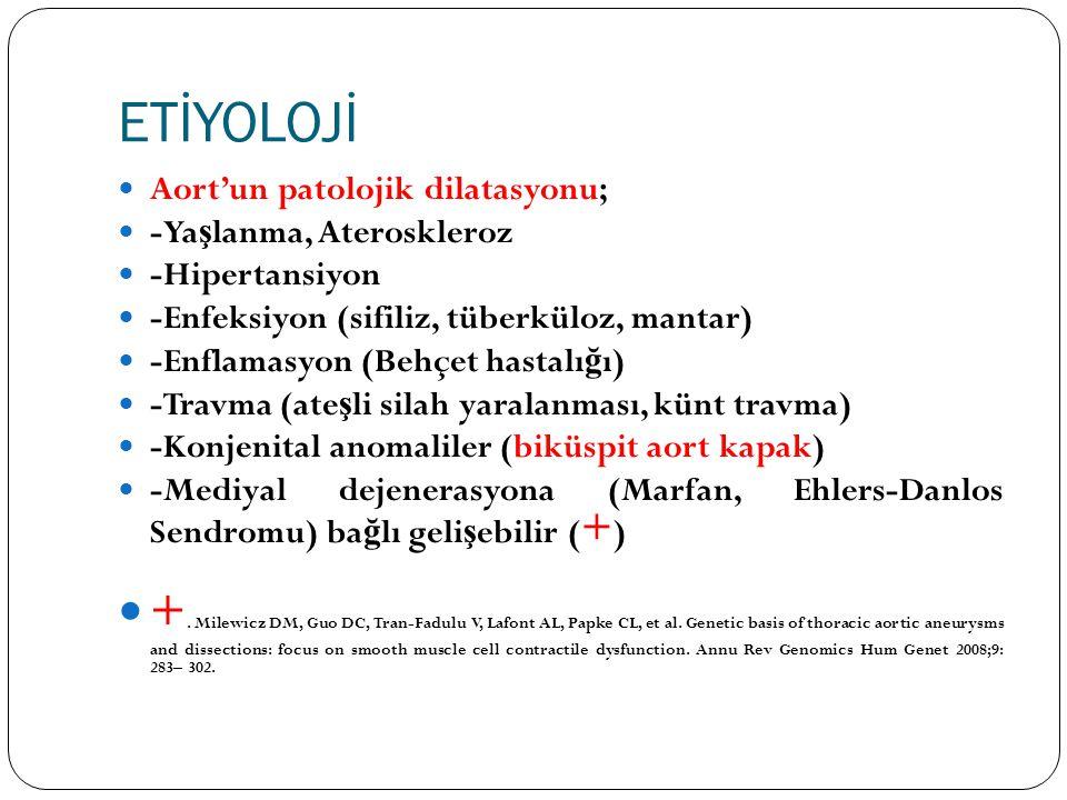 ETİYOLOJİ Aort'un patolojik dilatasyonu; -Ya ş lanma, Ateroskleroz -Hipertansiyon -Enfeksiyon (sifiliz, tüberküloz, mantar) -Enflamasyon (Behçet hasta