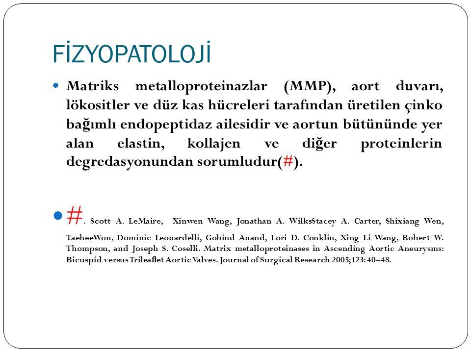 FİZYOPATOLOJİ Matriks metalloproteinazlar (MMP), aort duvarı, lökositler ve düz kas hücreleri tarafından üretilen çinko ba ğ ımlı endopeptidaz ailesid