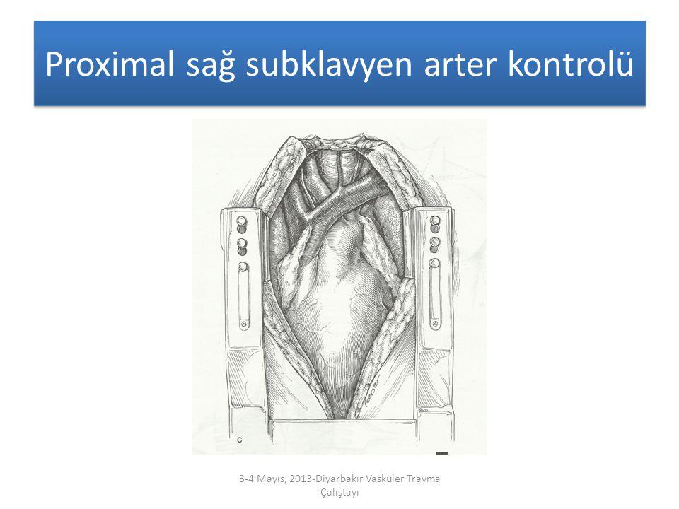 Proximal sağ subklavyen arter kontrolü 3-4 Mayıs, 2013-Diyarbakır Vasküler Travma Çalıştayı
