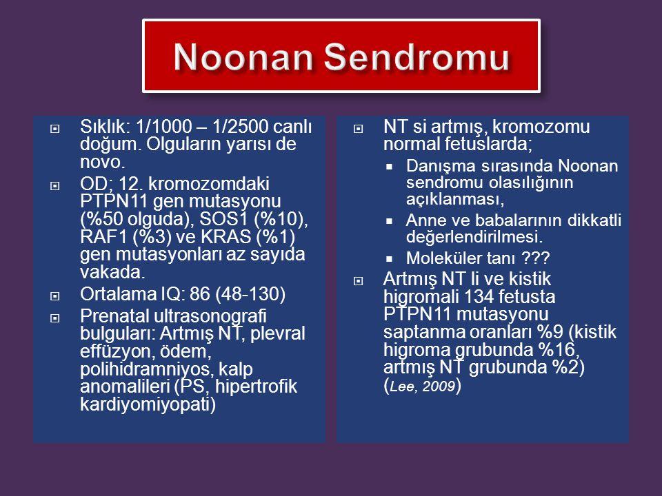  Sıklık: 1/1000 – 1/2500 canlı doğum. Olguların yarısı de novo.  OD; 12. kromozomdaki PTPN11 gen mutasyonu (%50 olguda), SOS1 (%10), RAF1 (%3) ve KR