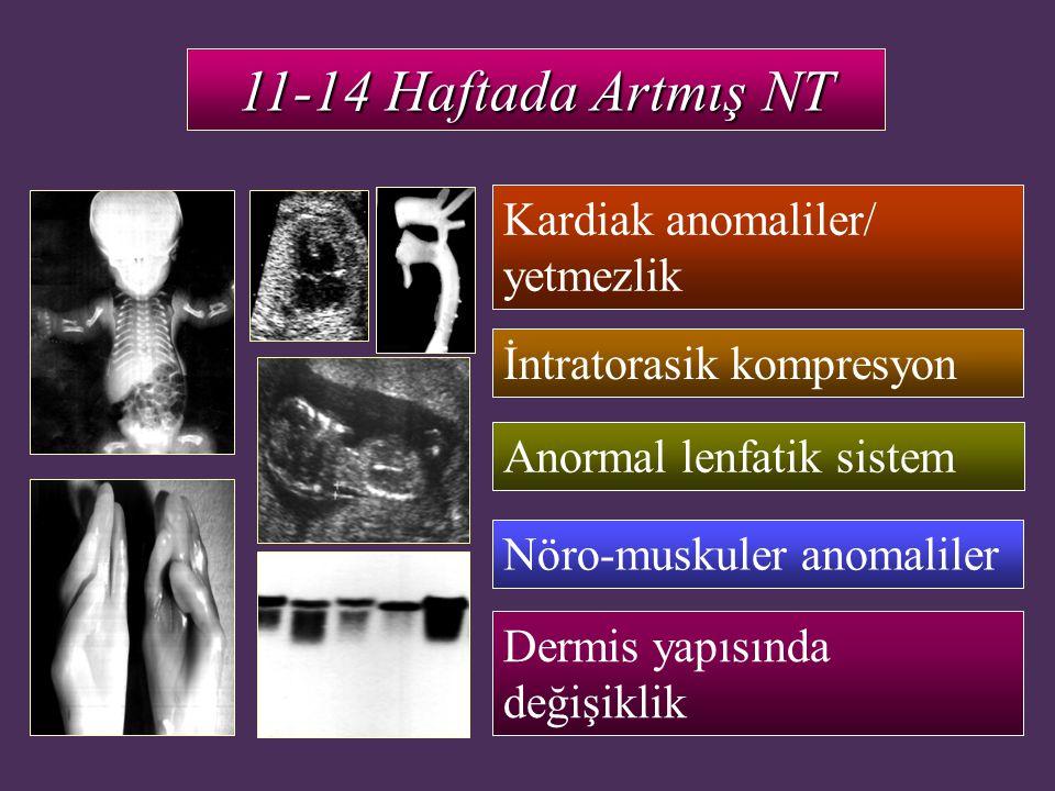11-14 Haftada Artmış NT Dermis yapısında değişiklik Anormal lenfatik sistem Nöro-muskuler anomaliler İntratorasik kompresyon Kardiak anomaliler/ yetme