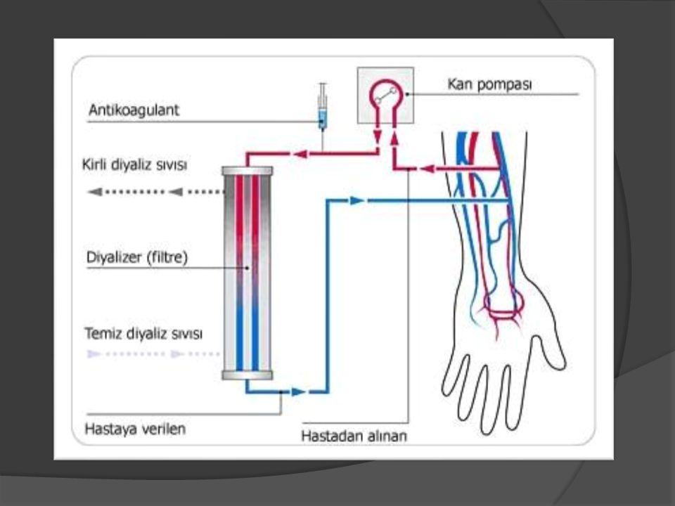 Periton diyalizi : Periton diyalizinde hemodiyalizden farklı olarak özel bir membran yerine periton membranı kullanılır.