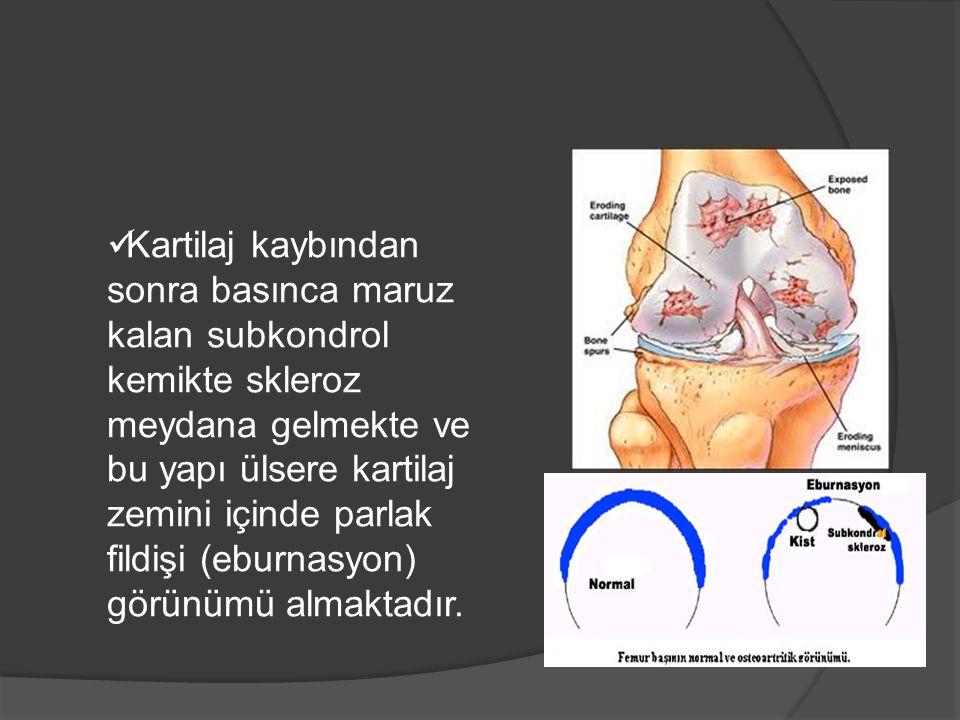Kartilaj kaybından sonra basınca maruz kalan subkondrol kemikte skleroz meydana gelmekte ve bu yapı ülsere kartilaj zemini içinde parlak fildişi (ebur