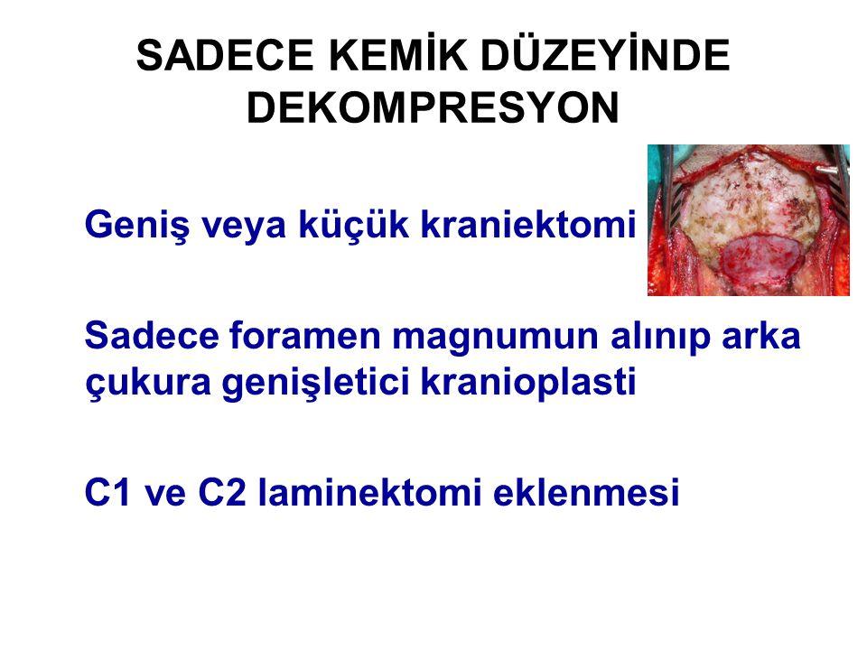 SADECE KEMİK DÜZEYİNDE DEKOMPRESYON Geniş veya küçük kraniektomi Sadece foramen magnumun alınıp arka çukura genişletici kranioplasti C1 ve C2 laminekt