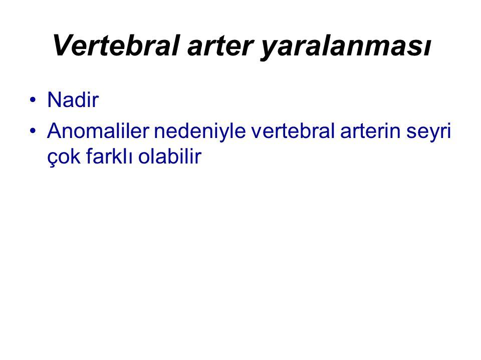 Vertebral arter yaralanması Nadir Anomaliler nedeniyle vertebral arterin seyri çok farklı olabilir