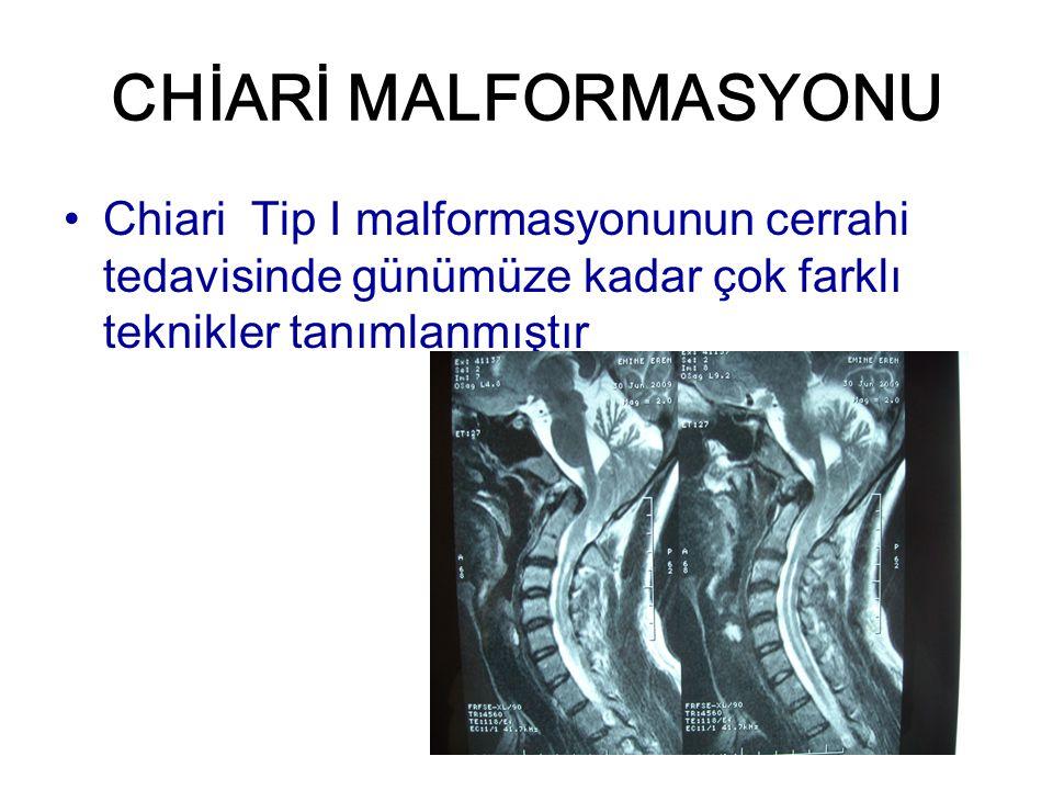 SİRİNGOMİYELİNİN TEDAVİSİNDE KARŞILAŞILAN KOMPLİKASYONLAR CM olan olgularda yeterli foramen magnum dekompresyonu yapılmasına rağmen siringomyeli küçülmeyebilir (%10,6) Siringomiyeli direnajı sirenks kavitesinden spinal subaraknoid alana, plevra, periton gibi başka vücut boşluklarına, ya da kranyal subaraknoid alana yapılabilir Bu direnaj yöntemlerinin komplikasyon oranı %15.7