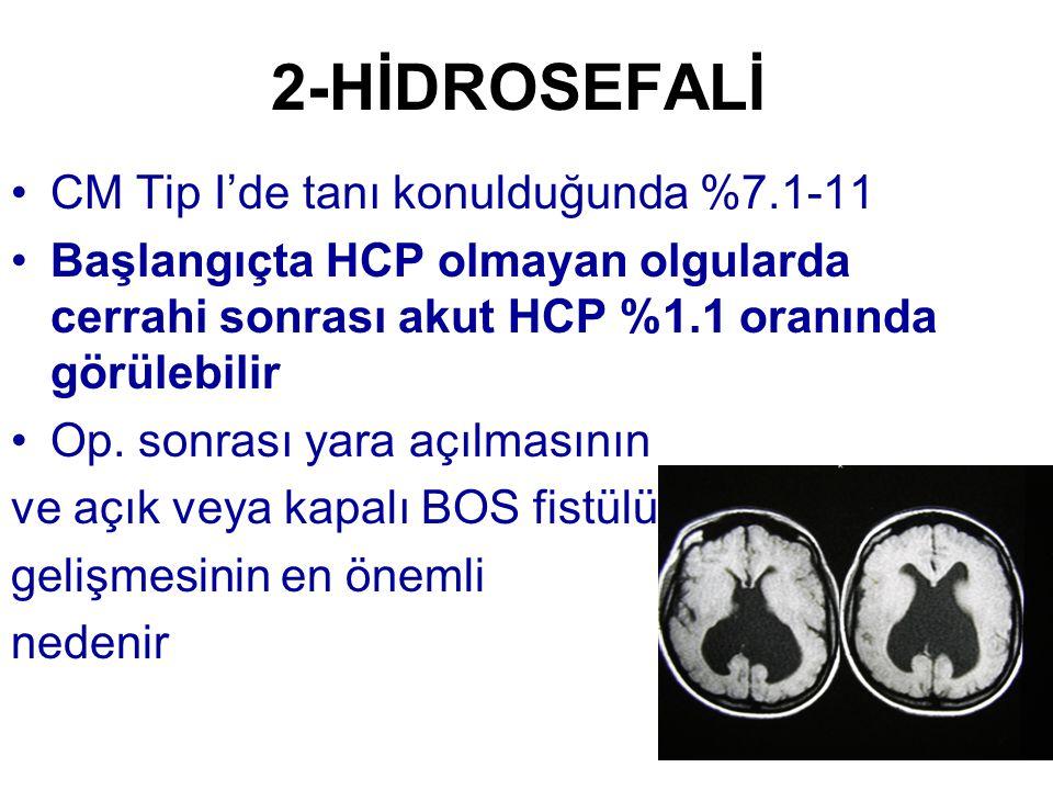 2-HİDROSEFALİ CM Tip I'de tanı konulduğunda %7.1-11 Başlangıçta HCP olmayan olgularda cerrahi sonrası akut HCP %1.1 oranında görülebilir Op. sonrası y