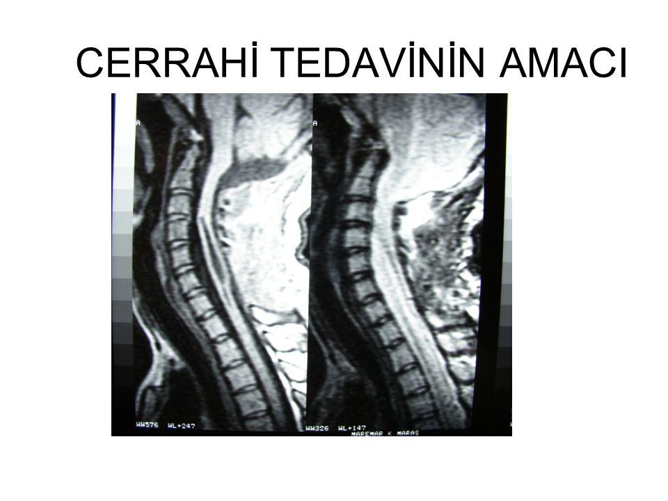 Serebellar Sarkma Kraniektomi çok geniş yapılır ise serebellum aşağıya sarkıp belirtilerin tekrarlamasına ve siringomyelinin düzelmemesine neden olabilir