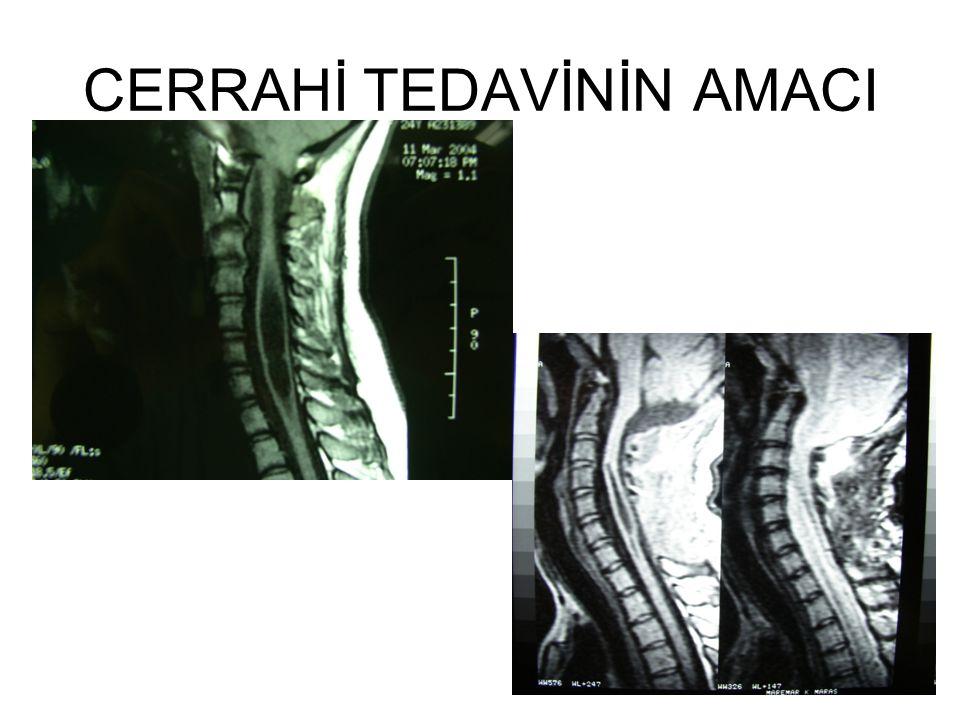 İnstabilite CM sıklıkla CVJ'da başka kemik anomalileri ile birliktedir (Daffau ve ark.