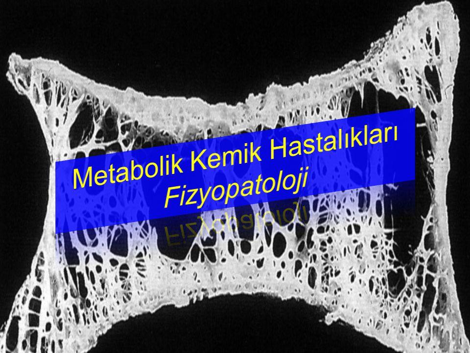 Renal Osteodistrofi Kronik böbrek hastaları – İlk patoloji hiperparatiroidi (osteitis fibrosa) – Osteomalazi Al toksisitesi – Adinamik kemik hastalığı .