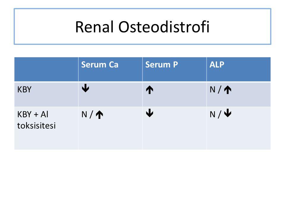 Renal Osteodistrofi Serum CaSerum PALP KBY  N /  KBY + Al toksisitesi N /   N / 