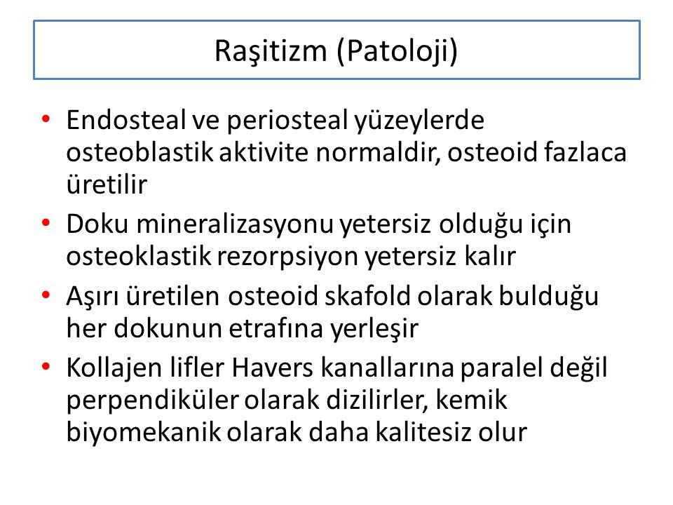 Raşitizm (Patoloji) Endosteal ve periosteal yüzeylerde osteoblastik aktivite normaldir, osteoid fazlaca üretilir Doku mineralizasyonu yetersiz olduğu