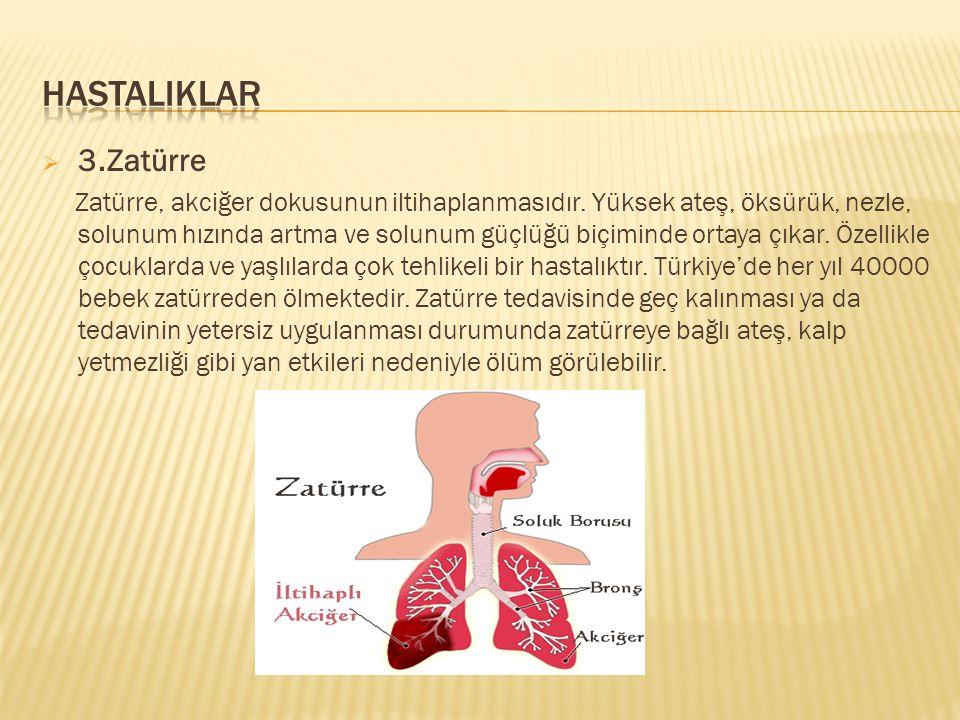  3.Zatürre Zatürre, akciğer dokusunun iltihaplanmasıdır. Yüksek ateş, öksürük, nezle, solunum hızında artma ve solunum güçlüğü biçiminde ortaya çıkar