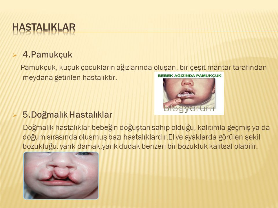  4.Pamukçuk Pamukçuk, küçük çocukların ağızlarında oluşan, bir çeşit mantar tarafından meydana getirilen hastalıktır.  5.Doğmalık Hastalıklar Doğmal