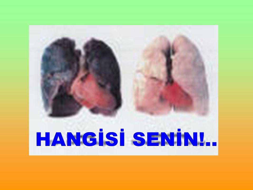 HANGİSİ SENİN!..