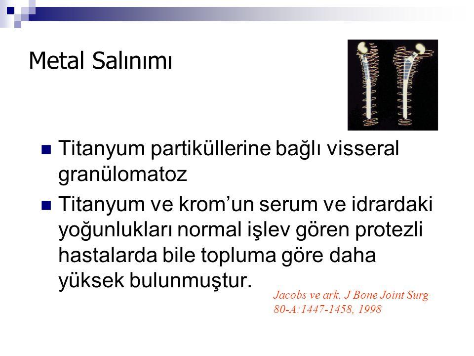 Metal Salınımı Titanyum partiküllerine bağlı visseral granülomatoz Titanyum ve krom'un serum ve idrardaki yoğunlukları normal işlev gören protezli has