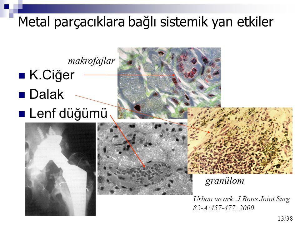 K.Ciğer Dalak Lenf düğümü Urban ve ark. J Bone Joint Surg 82-A:457-477, 2000 makrofajlar granülom 13/38 Metal parçacıklara bağlı sistemik yan etkiler