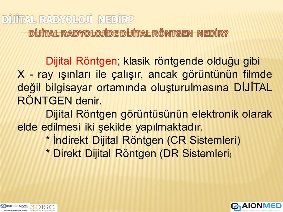 İndirekt Dijital Röntgen (CR Sistemleri) Genel olarak Bilgisayarlı Röntgen Sistemi olarak adlandırılır.